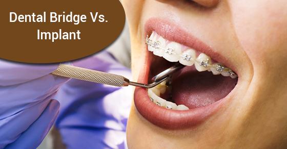 Dental bridges vs implants