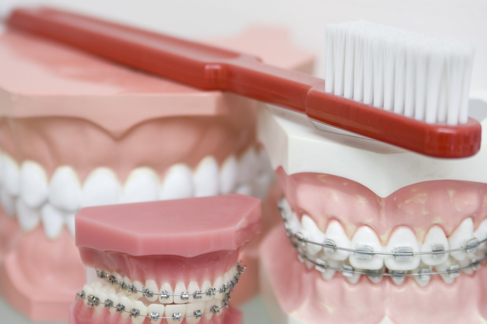What Is the Best Toothbrush for Braces?