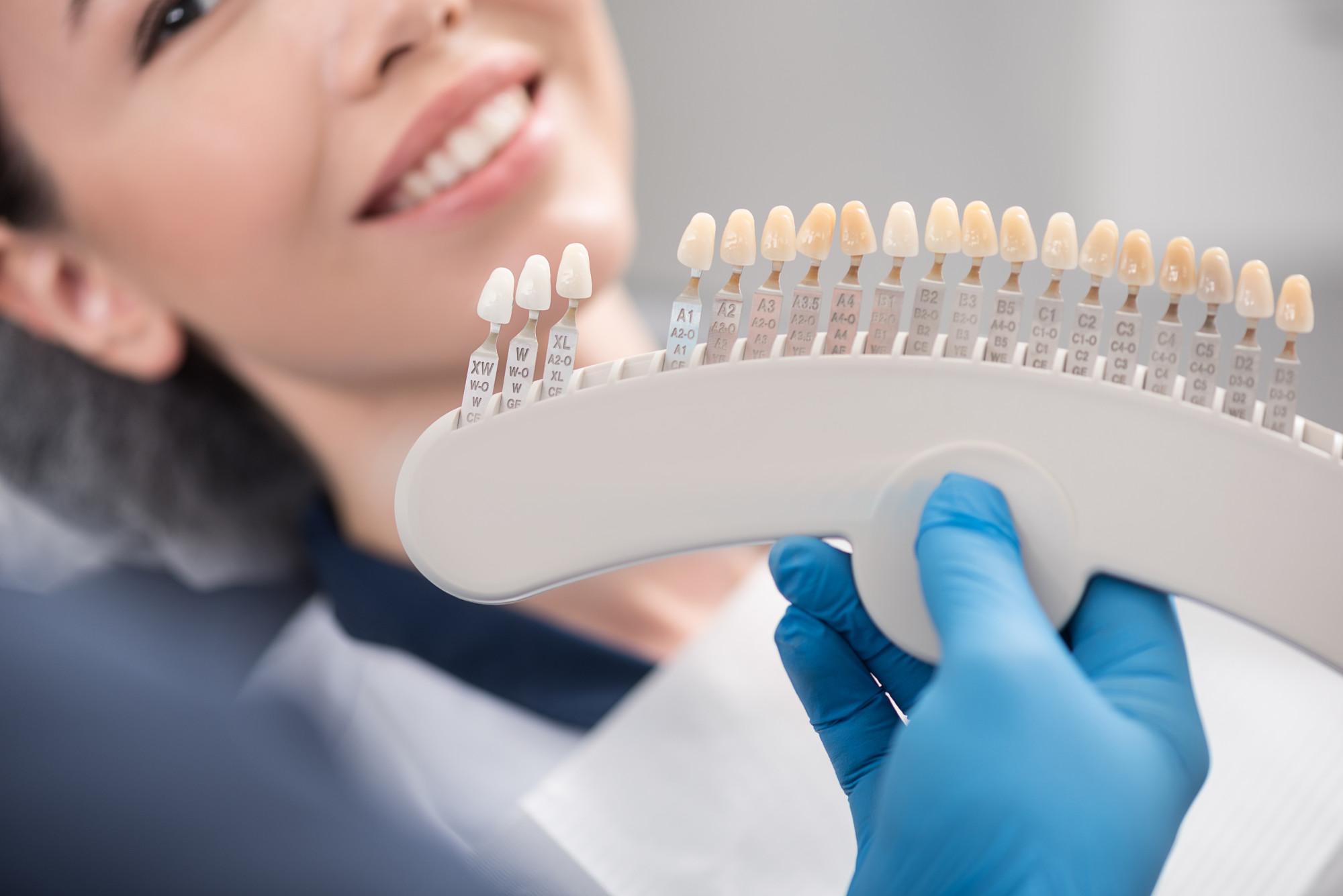 Dental Veneers vs Dental Crowns: What's the Difference